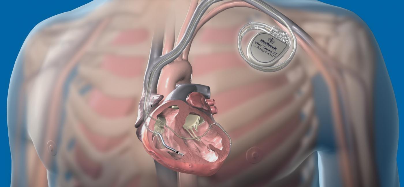 Имплантация кардиовертера-дефибриллятора